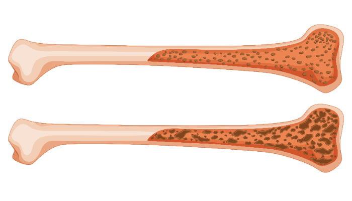 Osteoporosi: Cause, Prevenzione e Terapia